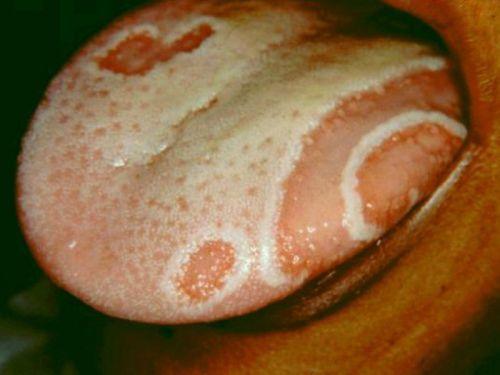 Географический язык (десквамативный глоссит) – симптомы, фото, сопутствующие заболевания, лечение