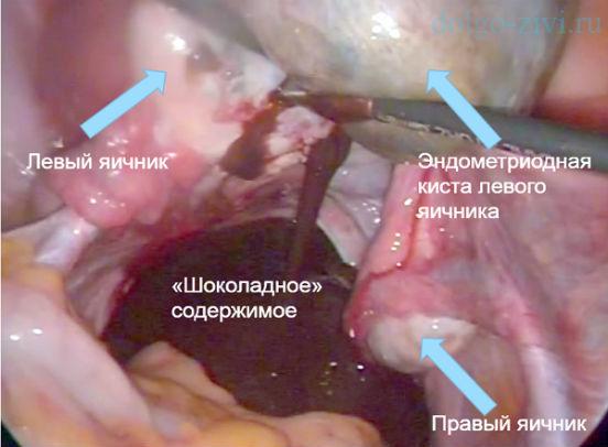 Эндометриоидная киста левого, правого яичника: лечение без операции