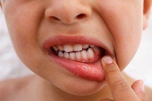 Гингивит у беременных: причины, симптомы, лечение и профилактика