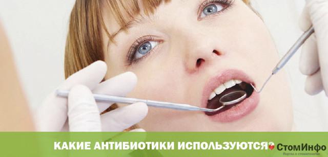 Периодонтит – лечение антибиотиками, обзор препаратов, целесообразность консервативной терапии