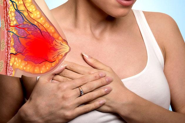 Задержка месячных и болит грудь: причины болей и способы избавления
