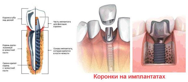 Коронка на имплант: плюсы и минусы, разновидности, способы фиксации