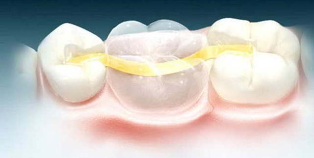 Микропротезирование зубов: что это такое, особенности процедуры, протез отсутствующего зуба