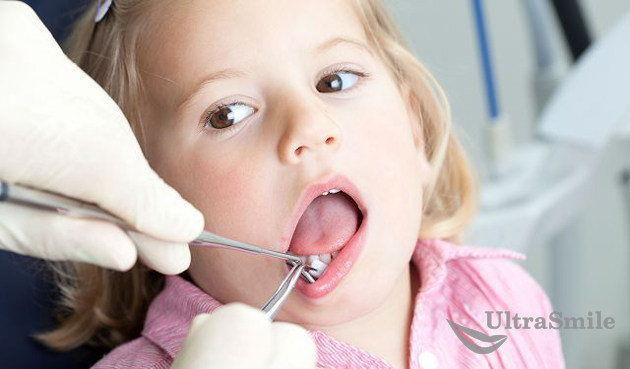 Пародонтит у детей: симптомы и особенности заболевания