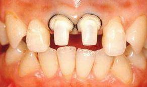 Обточка зубов под металлокерамику (обтачивание) - с уступом, больно ли