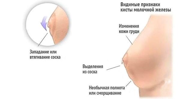 Виды рака молочной железы у женщин: неинвазивный, агрессивный, солидный, рожистый