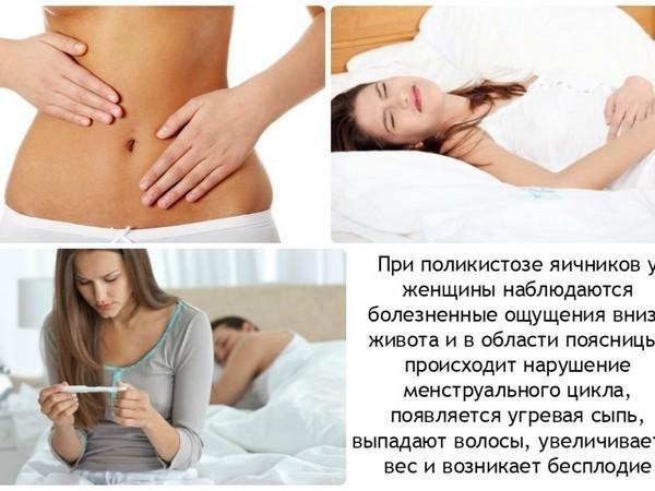 Синдром поликистозных яичников: его причины, симптомы и лечение