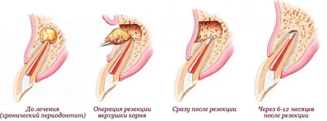 Лечение периодонтита — консервативные и хирургические методы
