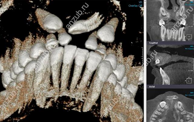 Сверхкомплектные зубы - причины, симптомы, современные методы лечения