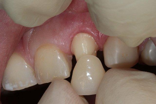 Почернел зуб под пломбой: причины и способы устранения проблемы