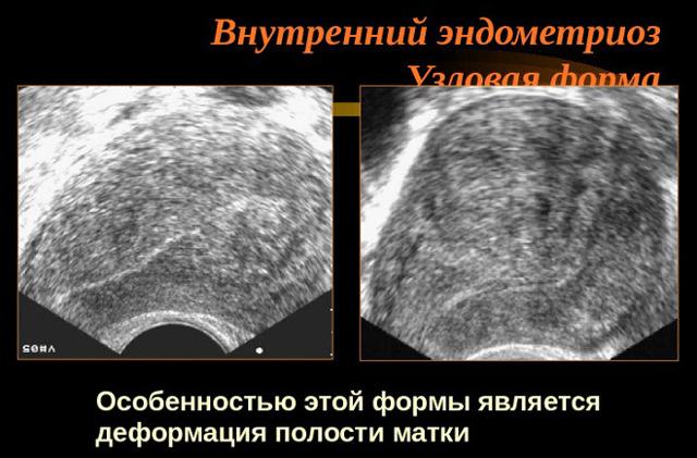 Эндометриоз матки тела с плоскоклеточной метаплазией - что это такое
