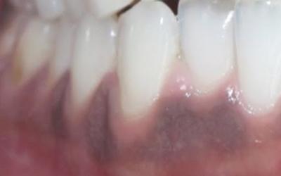 Потемнела десна возле зуба: причины, лазерное, медикаментозное лечение