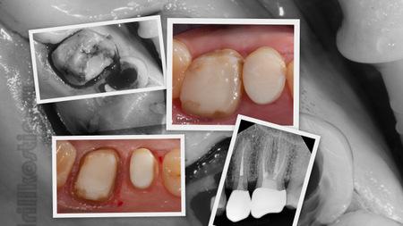 Почему портятся, ломаются, разрушаются зубы: что делать, восстановление разрушенного зуба