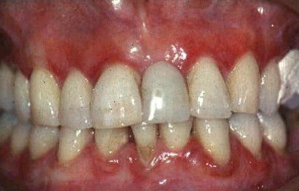 Какую анестезию лучше делать беременным женщинам при стоматологическом лечении