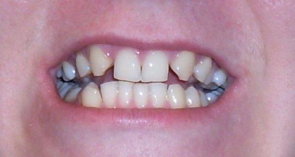 Чем опасно отсутствие зубов - вторичная и частичная адентия