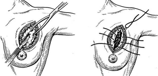 Дуктэктазия молочной железы: что это такое, причины и лечение