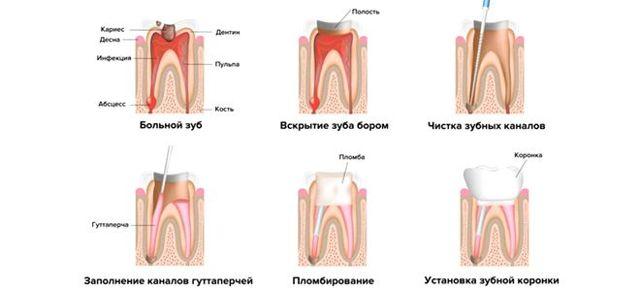 Периодонтит (воспаление корня зуба) – классификация, симптомы, лечение периодонтита