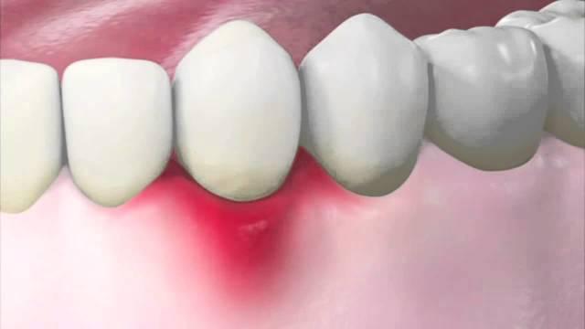 Обзор 5 эффективных антибиотиков при воспалении десен и зубов
