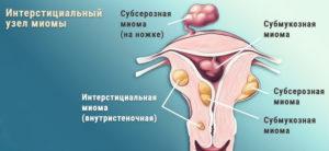 Интерстициальные миоматозные узлы: описание, возможные причины, симптомы и лечение