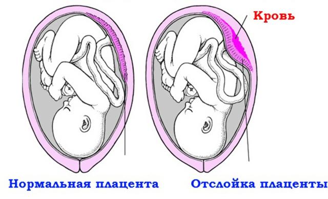 Обильные выделения при беременности во втором триместре