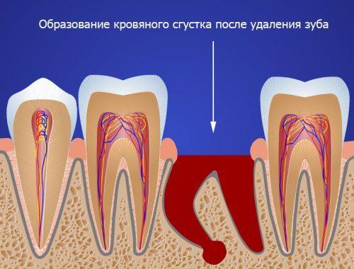 Элементарная стоматология: как чистить зубы после удаления зуба