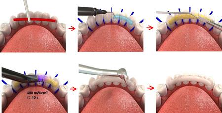 Шинирование зубов: какие методы используют для укрепления зубного ряда