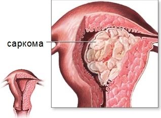 Саркома матки: что это такое, причины, симптомы и лечение опухоли