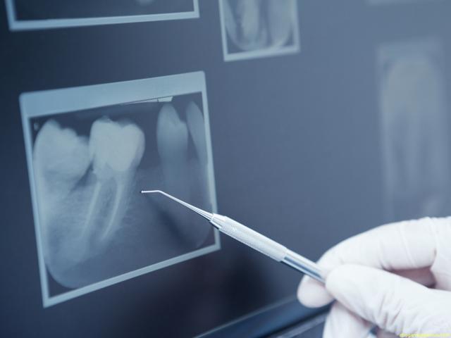Как снять коронку с зуба: 5 лучших способов