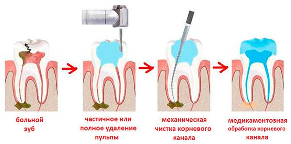 Методы лечения пульпита: биологический, ампутационный, хирургический девитальный, консервативный, комбинированный витальный
