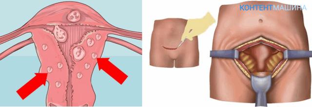 Какой наркоз используют при миомэктомии: полное описание, советы и рекомендации
