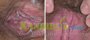 Молочница (вагинальный кандидоз): симптомы, причины и как лечить