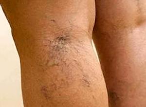 Могут ли отекать ноги при климаксе, причины появления и лечение