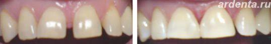 Диастема это щель между передними зубами примеры лечения диастемы
