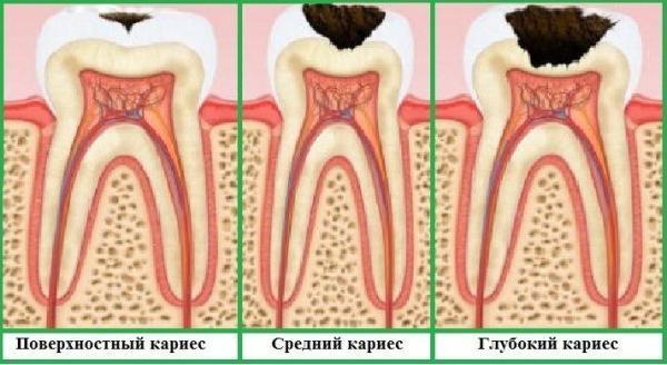 Гнилые зубы: фото взрослых и детей до и после лечения