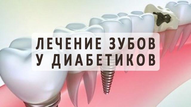 Протезирование зубов при сахарном диабете 2 типа, имплантация диабетикам