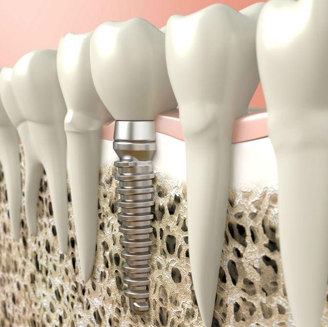 Как приживаются зубные импланты и как избежать их отторжения