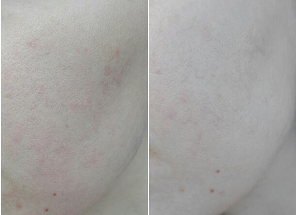 Липоевая кислота – применение в косметологии, эффективность косметических средств