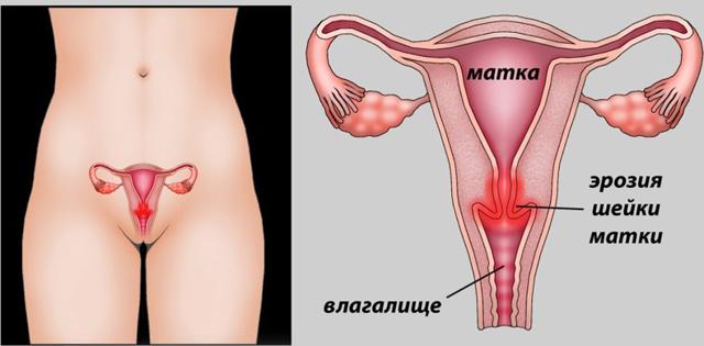 Впч и эрозия шейки матки: взаимосвязь, особенности