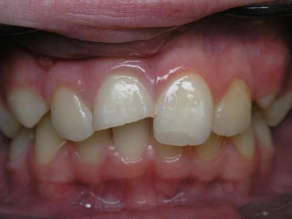 Болит зуб, но кариеса нет: причины, возможные заболевания, как устранить