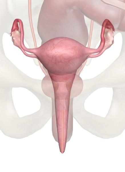 Фиброма яичника: этиология развития, симптомы и лечение опухоли