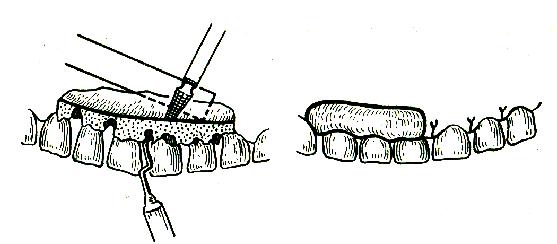 Суть и методы проведения лоскутной операции на десне