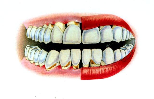 Можно ли лечить зубы при простуде - есть ли противопоказания?