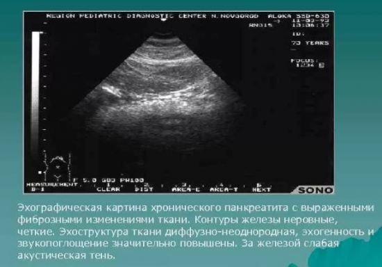 Диффузно-неоднородная структура поджелудочной железы: причины изменений, лечение патологий
