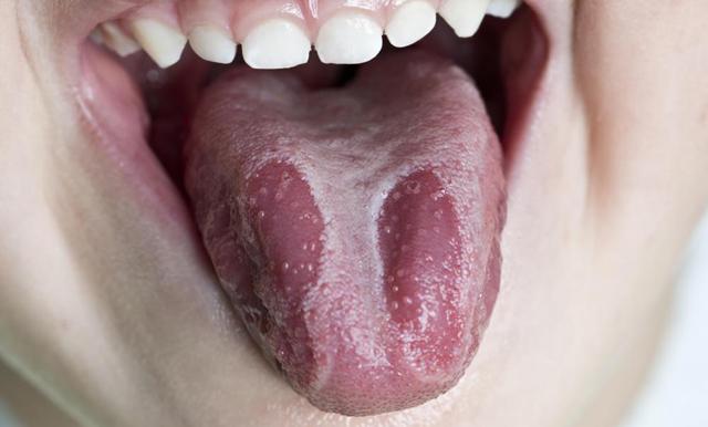 Складчатый язык – предпосылки к развитию аномалии и особенности ухода