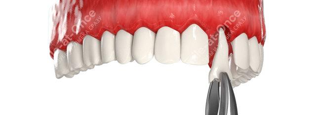 Имплантация протезов сразу после удаления зуба: 6 важных вопросов