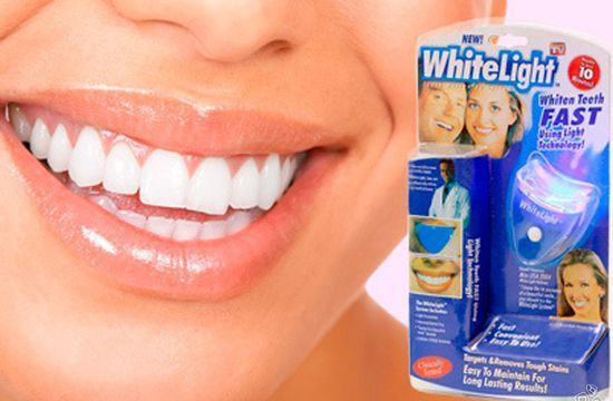 Методы отбеливания зубов в стоматологии, что лучше выбрать?
