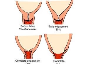 Фоновые и предраковые заболевания шейки матки: виды и признаки