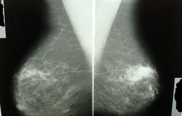 Фиброз стромы молочной железы: причины появления и симптомы