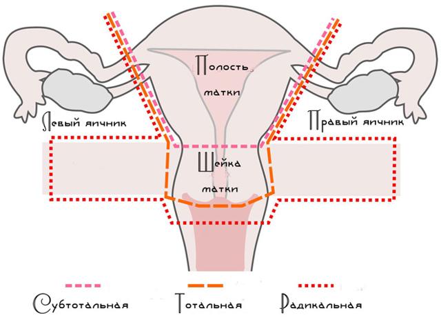 Удаление матки после 50 лет - последствия для организма