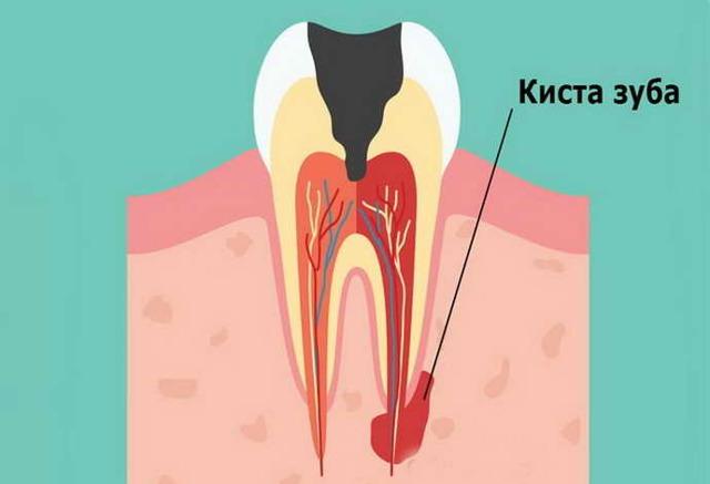 Киста зуба: лечение в домашних условиях, способы снятия воспаления